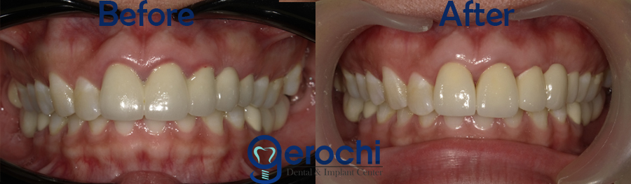 Zirconia Crown Cost