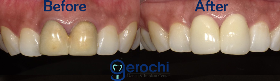 Dental Crown Veneers